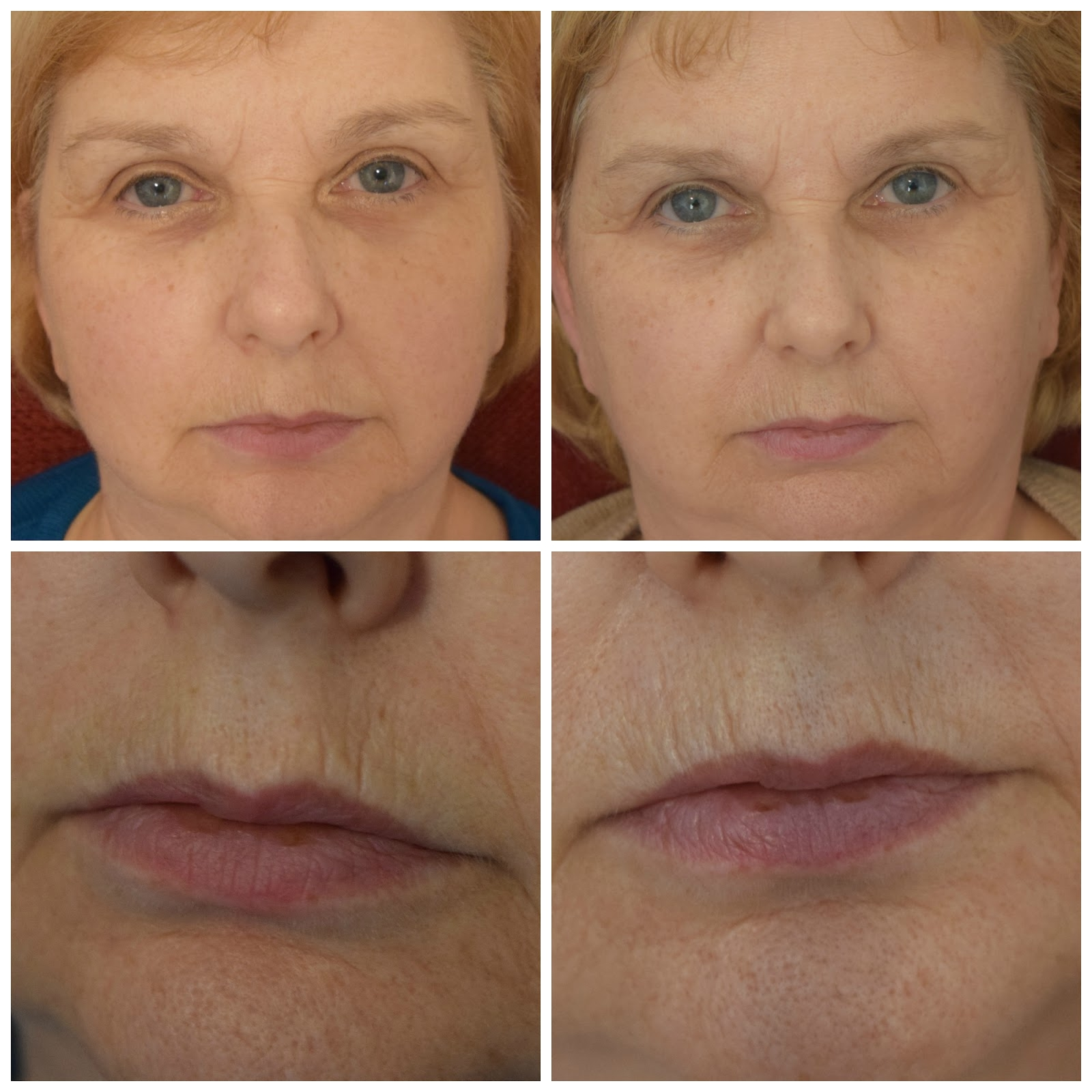 lightstim for wrinkles before after