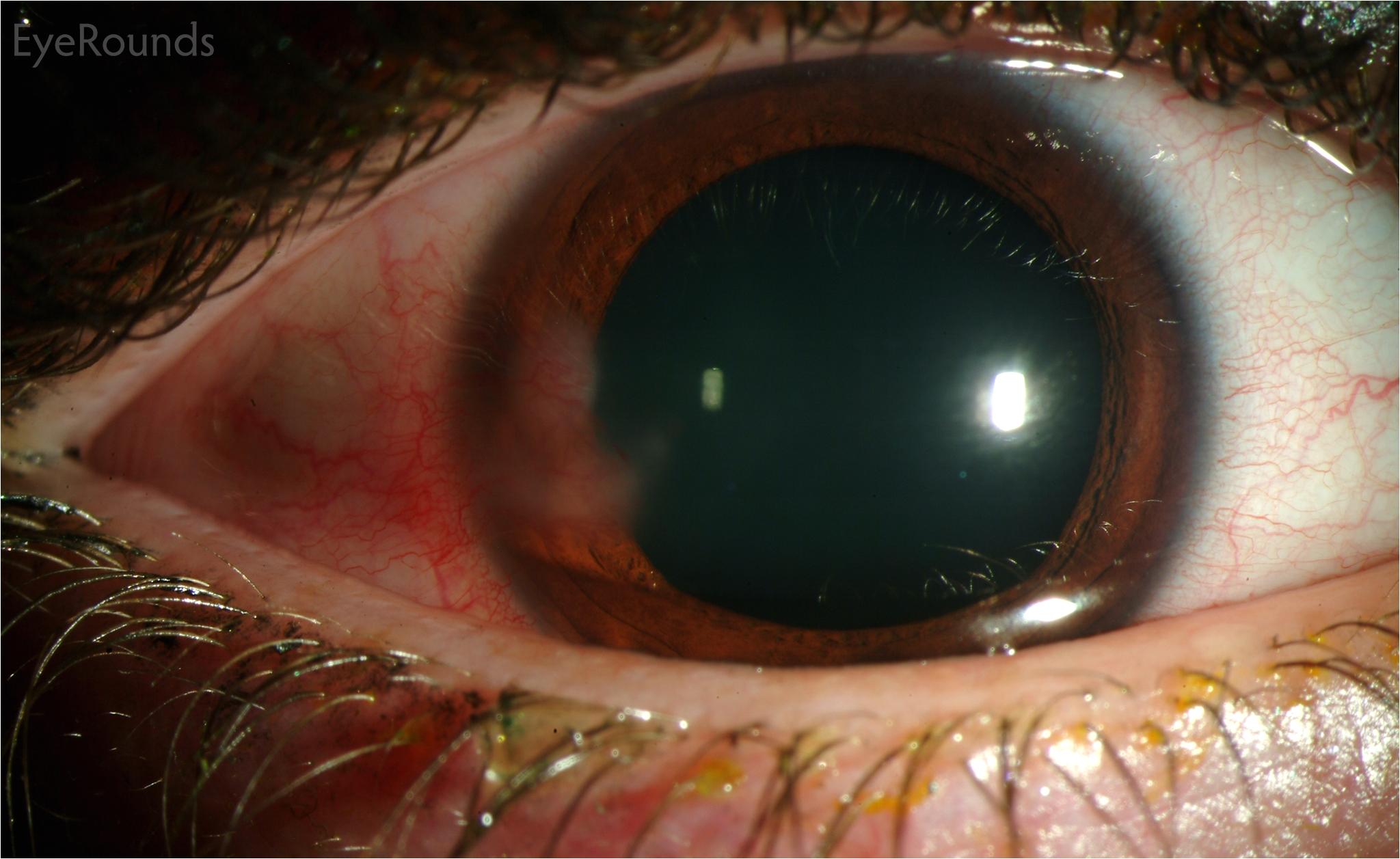 hsv stromal keratitis with resultant stromal vascularization